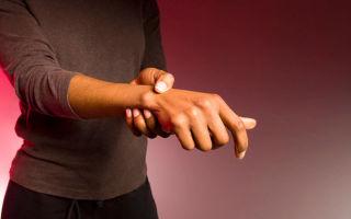 Почему образуется гигрома и как ее лечить?