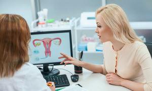 Дисплазия шейки матки — причины, симптомы, степени, лечение