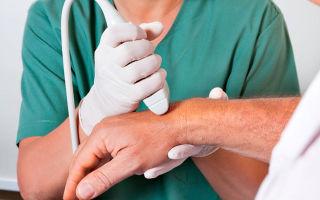 Почему возникает ревматоидный артрит суставов и как его лечить?