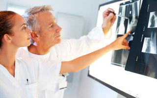 Причины и последствия мраморной болезни