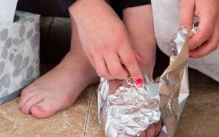 Показания и противопоказания лечения суставов фольгой