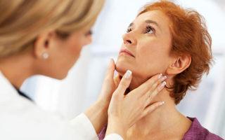Причины и лечение воспаления лимфоузлов на шее