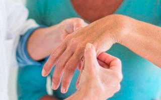 Как выглядит и как лечить дерматомиозит у взрослых и детей?