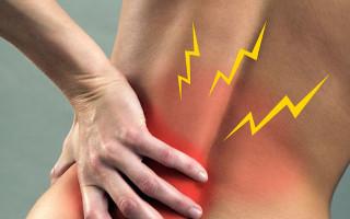 Причины и лечение защемления нерва в пояснице