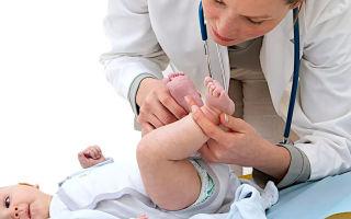 Дисплазия тазобедренного сустава у ребенка — причины, симптомы, лечение
