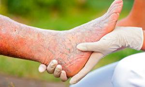 Тромбофлебит нижних конечностей — причины, симптомы, диагностика, лечение