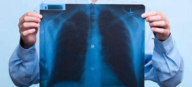Лечение при ушибе грудной клетки в домашних условиях народными средствами и мазями