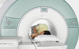 МРТ пояснично-крестцового отдела позвоночника — показания, порядок действий, результаты