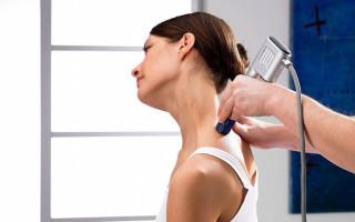 Особенности лечения остеохондроза шейного отдела
