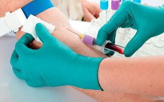 В каких случаях назначают анализ крови АЦЦП?