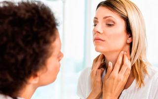 Лимфоузел на шее — причины, симптомы и лечение воспаления