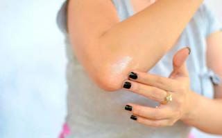 Как подобрать разогревающие мази для мышц и суставов?