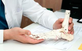 Вальгусная деформация стопы — причины, симптомы, стадии, лечение