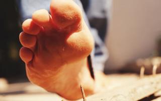 Первая помощь при травме ноги о ржавые гвозди