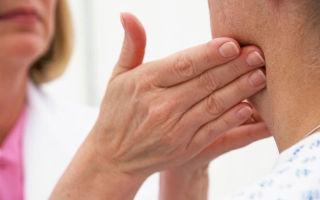 Как лечат воспаленные лимфоузлы?
