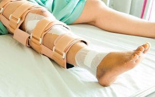 Перелом шейки бедра — причины, симптомы, виды, диагностика, лечение