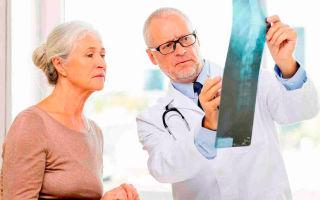 Как проявляется болезнь Бехтерева у женщин и как ее лечить?