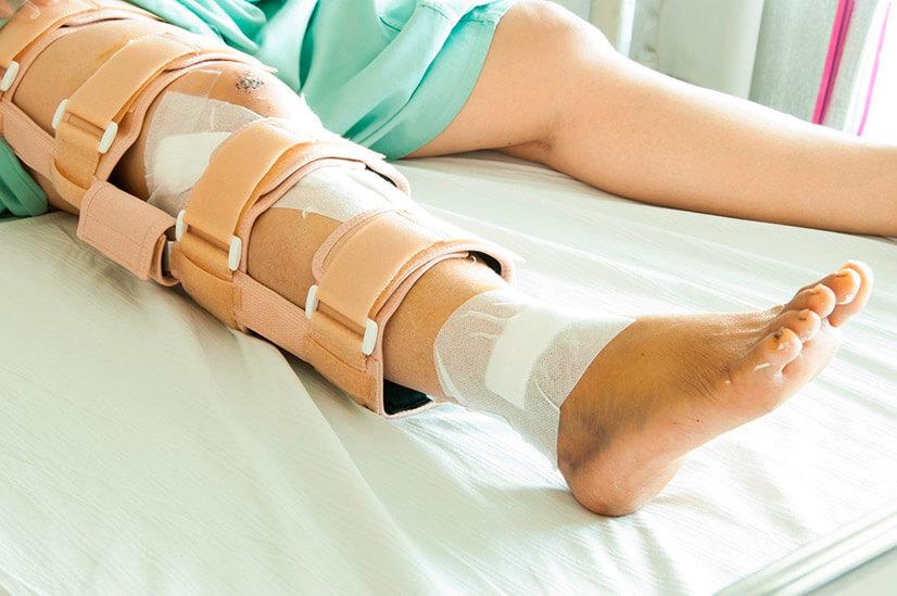 Перелом шейки бедра - причины, симптомы, виды, диагностика, лечение