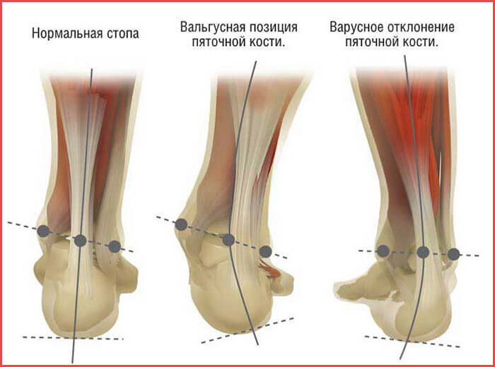 Вальгусная деформация стопы - причины, симптомы, стадии, лечение