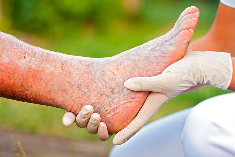 Тромбофлебит нижних конечностей - причины, симптомы, диагностика, лечение