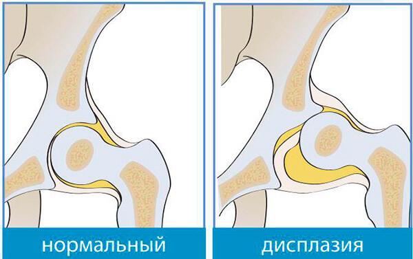 Что такое дисплазия тазобедренного сустава?