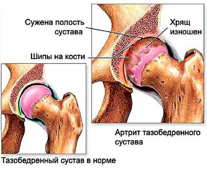 Что такое коксартроз тазобедренного сустава?