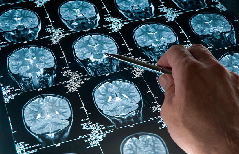 Как проявляется псевдобульбарный синдром и как его лечить?