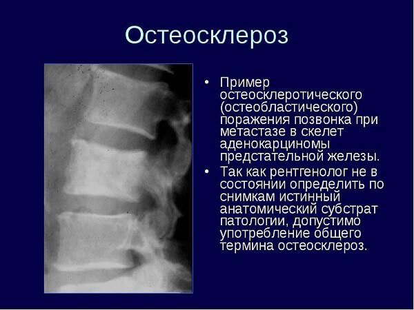 Разновидности остеосклероза