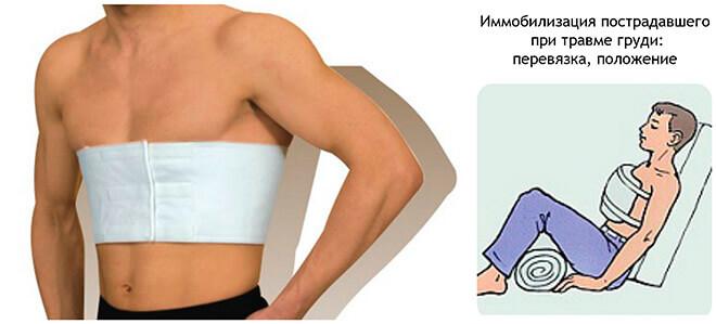 Первая помощь при ушибе грудной клетки