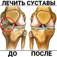 Применение маклюры для лечения артроза и артрита