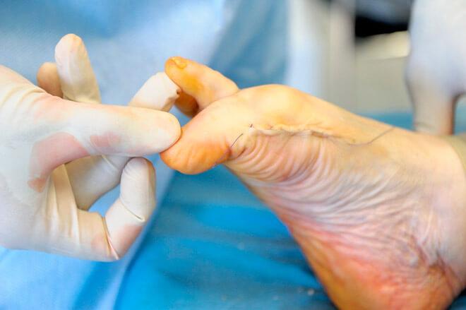 Операции на стопе при вальгусной деформации